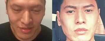 hair plugs for men eyebrow transplant procedure fue hair transplant clinics