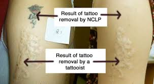 warning northern cosmetic laser practice laser tattoo removal