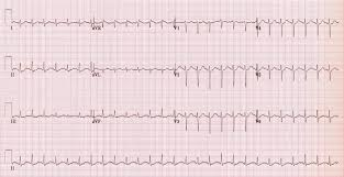 sinus tachycardia life in the fast lane ecg library