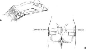 pilonidal cyst location pilonidal cystectomy