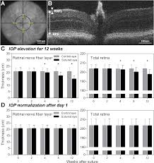 a mouse model of chronic ocular hypertension induced by