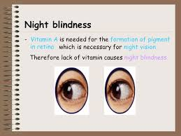 Night Blindness Deficiency Subject Biology Title Nameduty Cheung Wai Yee Author Of P 1 U2013 P