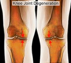 Interactive Knee Anatomy Interactive Color Mri Knee Joint Anatomy Medical Media Images
