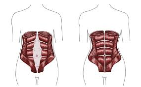 fixing diastasis recti post pregnancy belly in 10 minutes of