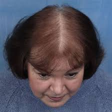 best haircut for alopecia best haircut for alopecia best hairstyles for fine hair or thin