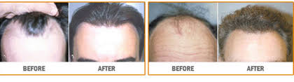 neograft recovery timeline neograft hair transplants raleigh