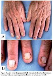 nail disorder your finger nails