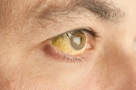What Causes Eye Blindness Why Are My Eyes Yellow