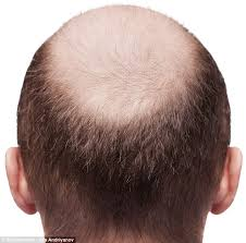 bald now there s a jab to make hair grow back daily mail online