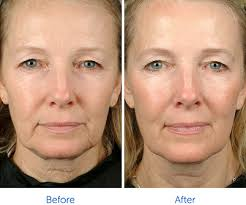 best hairstyles for sagging jowls how to fix sagging jowls without surgery lasky aesthetics