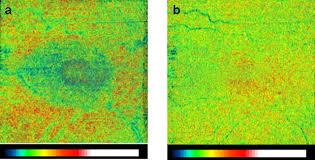 retinal basement membrane abnormalities and the retinopathy of