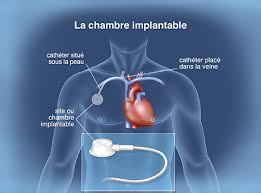 cool of pose de chambre implantable chambre