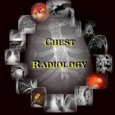 Radiology Anatomy Chest Radiology Chest Tutorial Chest Anatomy Lung Anatomy Lung