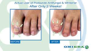 amazon com omiera labs podiazole toenail fungus treatment 0 23