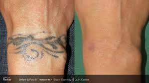 before and after u2014 sage laser tattoo removal