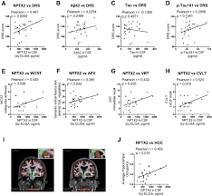 nptx2 and cognitive dysfunction in alzheimer u0027s disease elife