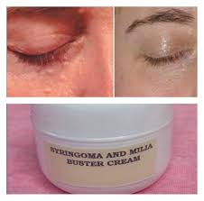 syringoma and milia buster cream