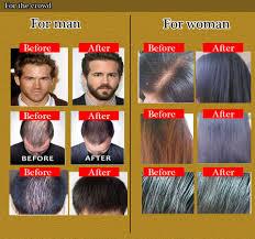 aliexpress com buy hair tonic for hair loss remedies fast hair