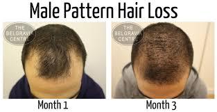 Azelaic Acid Hair Loss How Does The Belgravia Centre Treat Male Hair Loss The