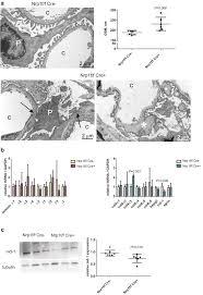 neuropilin1 regulates glomerular function and basement membrane