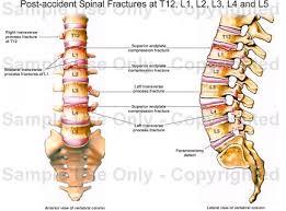 Human Vertebral Column Anatomy Human Anatomy Diagram L4 Spine Very Common Source L4 Spine Post