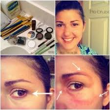 how to bruise yourself with se makeup
