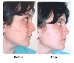 blu light therapy for acne home treatment for back acne skin laser resurfacing cost acne