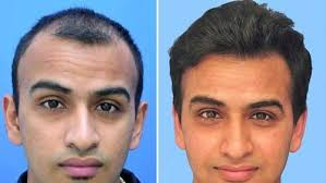 hair bonding low cost hair bonding in bangalore
