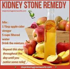 11 best kidney stone treatment images on pinterest