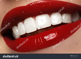 perfect smile after bleaching dental care stock photo 367538771