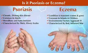 natural help for eczema and psoriasis