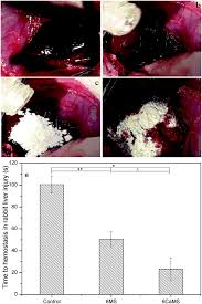 calcium modified microporous starch with potent hemostatic