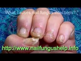 who gets nail fungus infections youtube