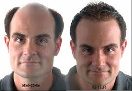 new hair growth discoveries baldness cure by 2018 shiseido a japanese cosmetic company