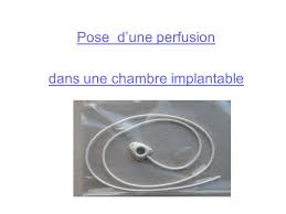 chambre implantable d馭inition la chambre implantable mercredi 23 avril ppt télécharger
