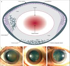 Cataract Leads To Blindness Due To Cataracts The Lancet