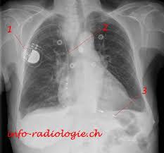 pacemaker chambre stimulateur défibrillateur holter