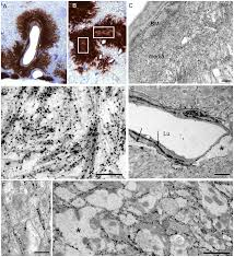 fatal transmissible amyloid encephalopathy a new type of prion