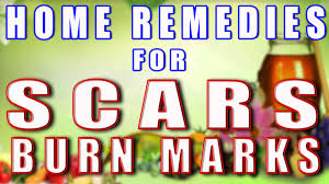Home Remedies For Small Burns - home remedy for scars u0026 burn marks ii जलन क द ग क