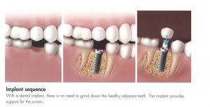 Tips For A Dazzling Smile by Blog