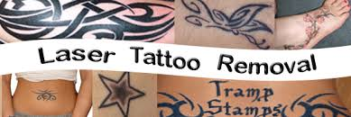 anticipation tattoo removal