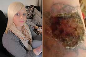 tattoo removal kit burns hole in woman u0027s arm daily star