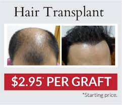 hair transplant costs in the philippines read more at our blog maxim hair restoration and hair transplant