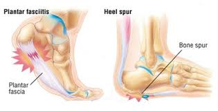 ouch how to solve heel pain heel spurs plantar fasciitis u2014 dr