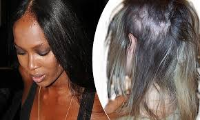 reign cw show hair weave beads dangers of hair extensions blinding headaches to bleeding scalps