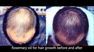 Essential Oils For Hair Loss Rosemary Oil For Hair Growth Before And After Youtube