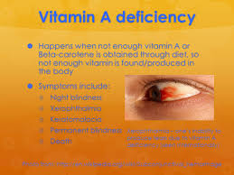 Night Blindness Deficiency Vitamin A Deficiency A Permanent Cure Vitamin A Deficiency A