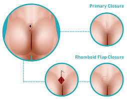 pilonidal cyst location pilonidal disease plastic and reconstructive surgery beverly