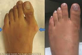 Comfortable Shoes After Foot Surgery Would You Have U0027cinderella Surgery U0027 Rise In Women Changing The