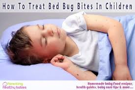 Remedy For Bed Bug Bites How To Treat Bed Bug Bites In Children